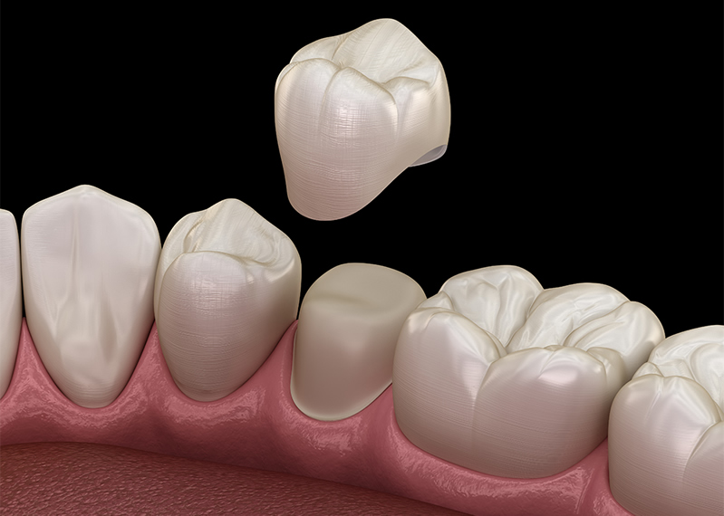 Restore your teeth with crowns & bridges in Bristol