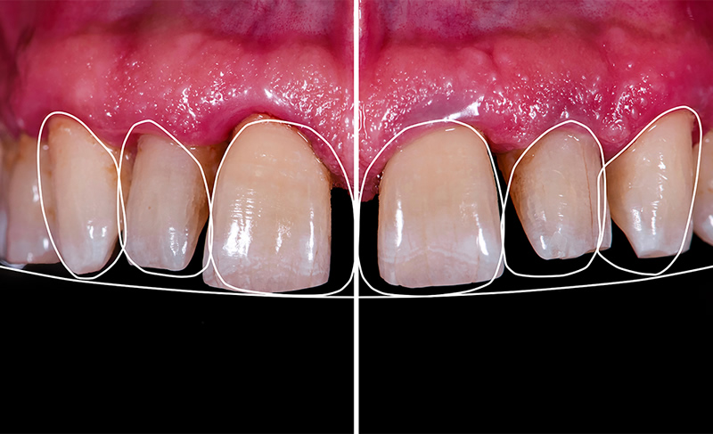 Improve your smile with Dental Veneers in Bristol