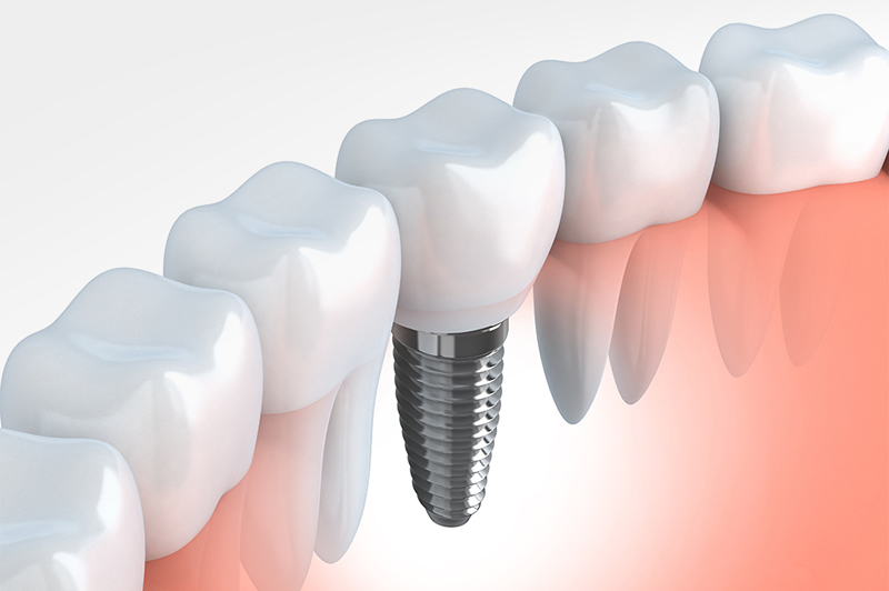 Replace missing teeth with dental implants in Bristol